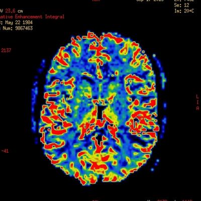 Diagnostično slikanje z radioizotopi