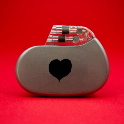 Srčni spodbujevalnik
